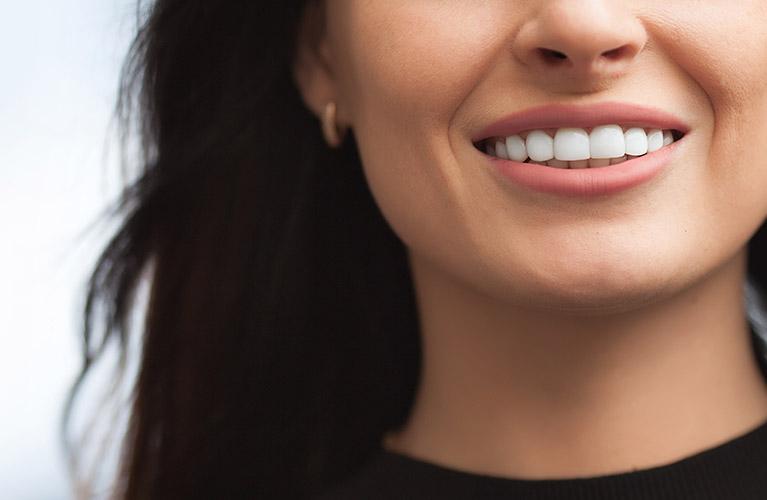 Dental Implants in Calgary, AB